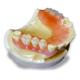 ナチュラルフィット床義歯